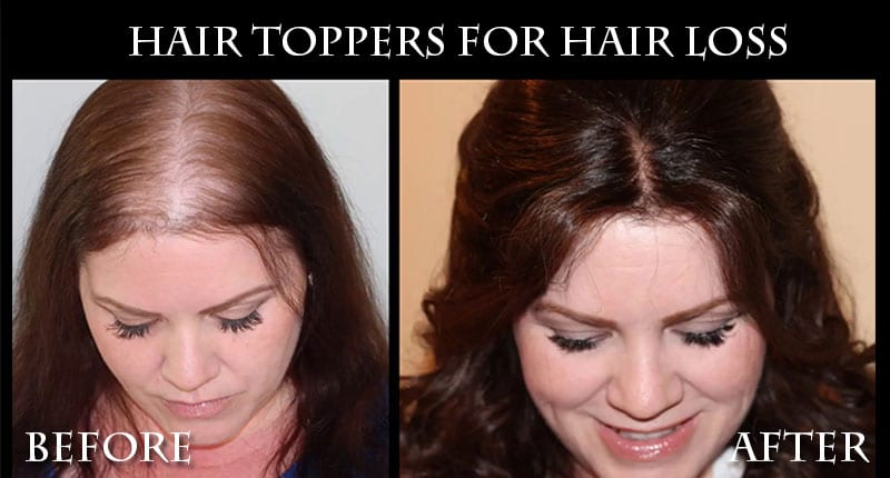 Hair Toppers For Hair Loss - How Your Hair Could Look Gorgeous Again?