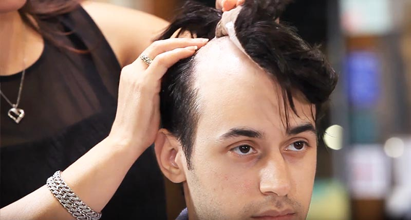 Insders' Tips: How To Remove Hair Piece Toupee Safe?