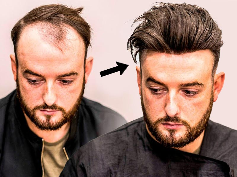The Ultimate Guide On How To Make A Toupee DIY | Lewigs