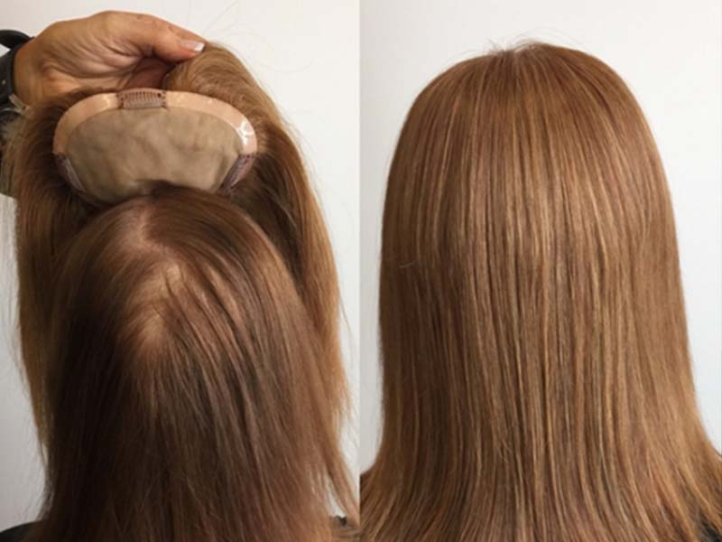 Hair Topper Before And After: Look At Its Pros And Cons!