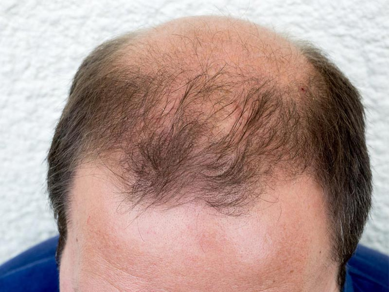 What Causes Male Pattern Baldness And How To Deal With It