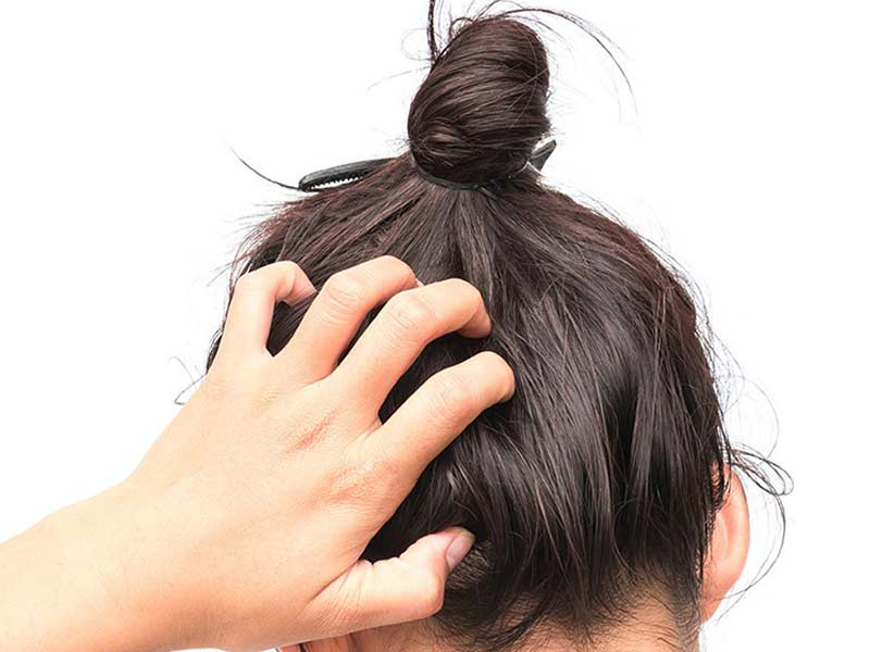[Reviews] Wig Adhesive 101: Should You Choose Glue Or Tape Adhesive?