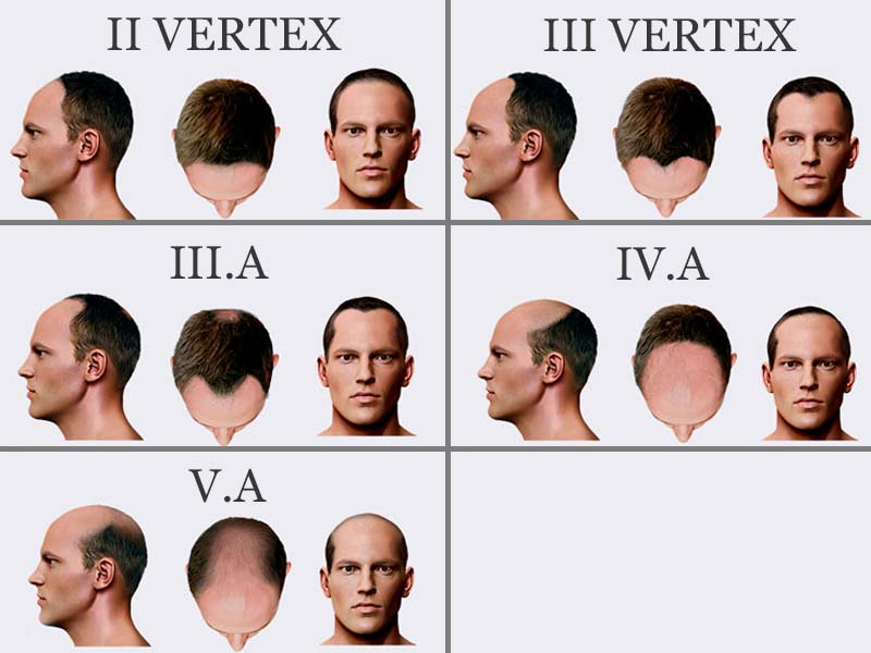 How Bald Are You? - Male Pattern Baldness Stages (Norwood Scale)