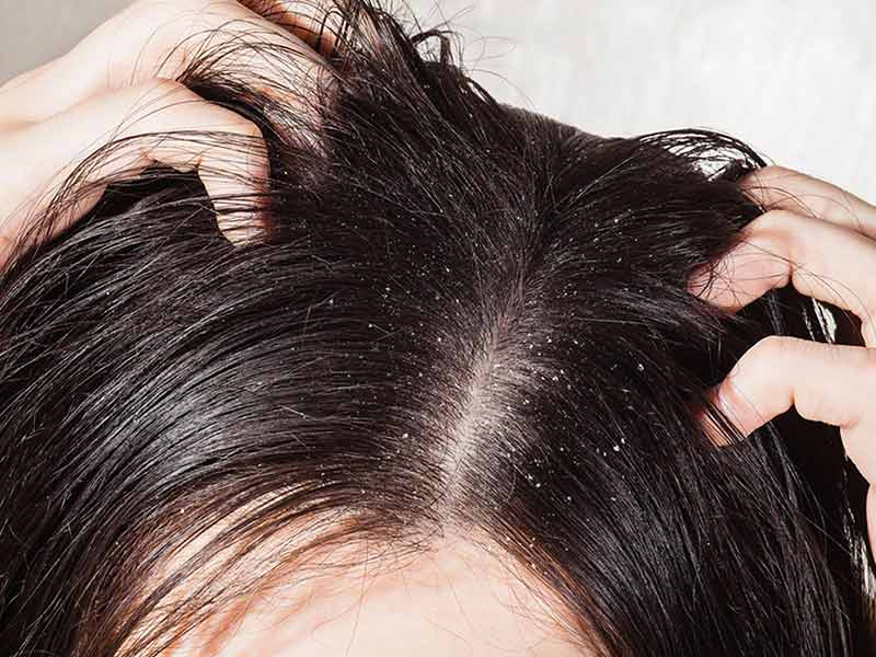 [Exclusive Guide] How Often Should You Wash Your Hair?