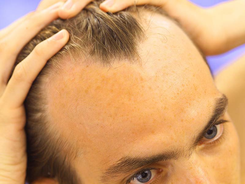 Why Is My Hair Falling Out? - The Underlying Causes Of Hair Loss