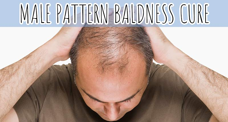 Is Male Pattern Baldness Cure Discovered Yet? - Hope vs. Reality