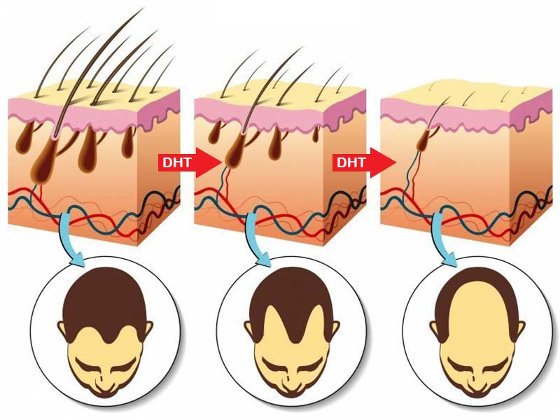 From Baldness To Hair Growing On Your Palms Common Masturbation Myths Busted