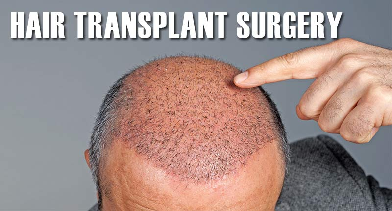 Is Hair Transplant Surgery Really Worth Trying?