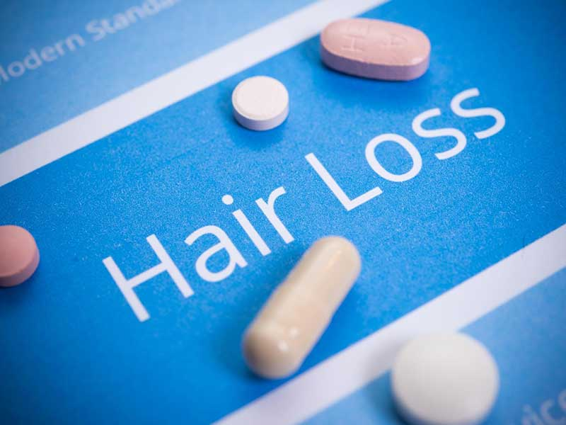How To Reverse Hair Loss From Medication: The Easy Way Out