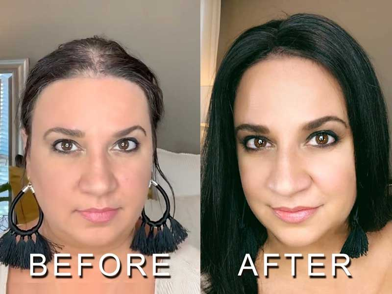 Non Surgical Hair Replacement - It Never Fails, Unless...