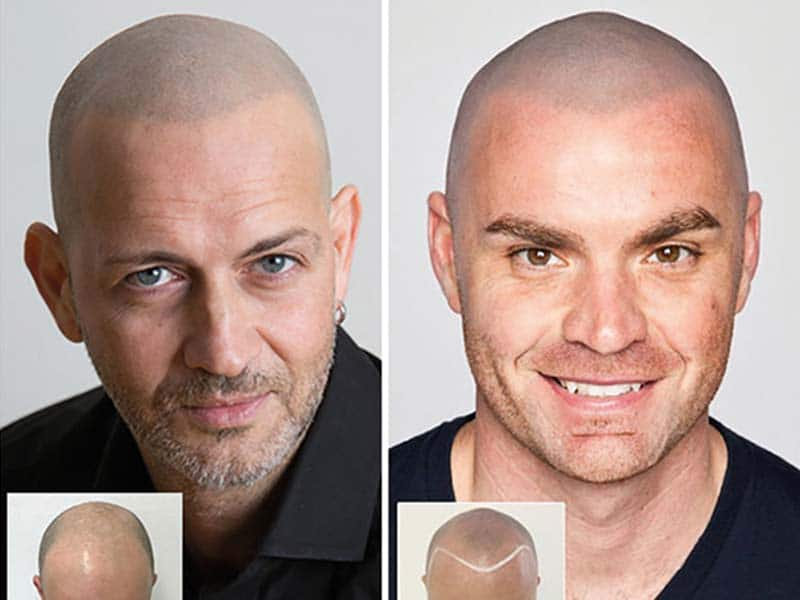 Scalp Micropigmentation Consulting – What The Heck Is That?
