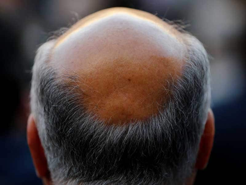 How Long Does It Take To Go Bald? - These Stats Are Real!