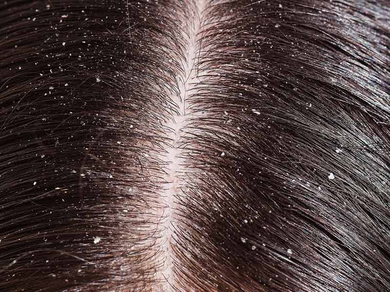 What Is Dandruff? - It's Not Like Snowflakes!