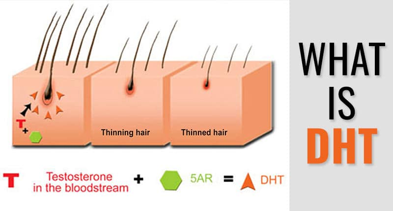 What Is DHT And Its Close Relation With Hair Loss | Lewigs