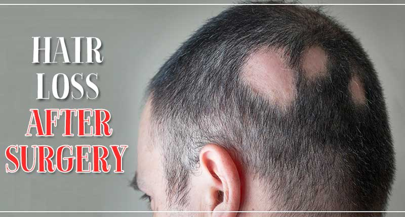 Hair Loss After Surgery: How To Grow Your Hair Back?