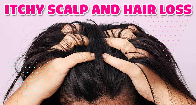 Myth Busting: Itchy Scalp And Hair Loss - How Are They Related?