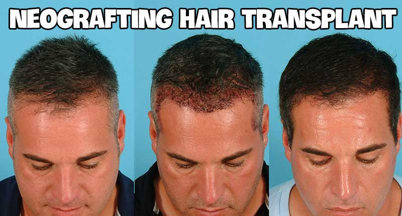 What Is Neografting Hair Transplant And How Does It Work?