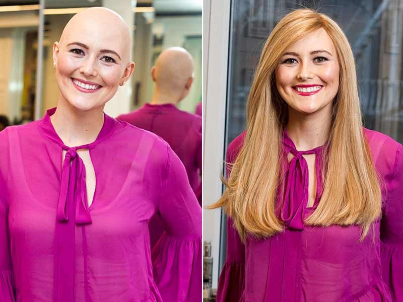 Wig For Chemo Patient - How To Choose It Right?