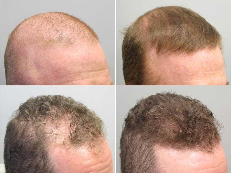 how long until propecia stops hair loss
