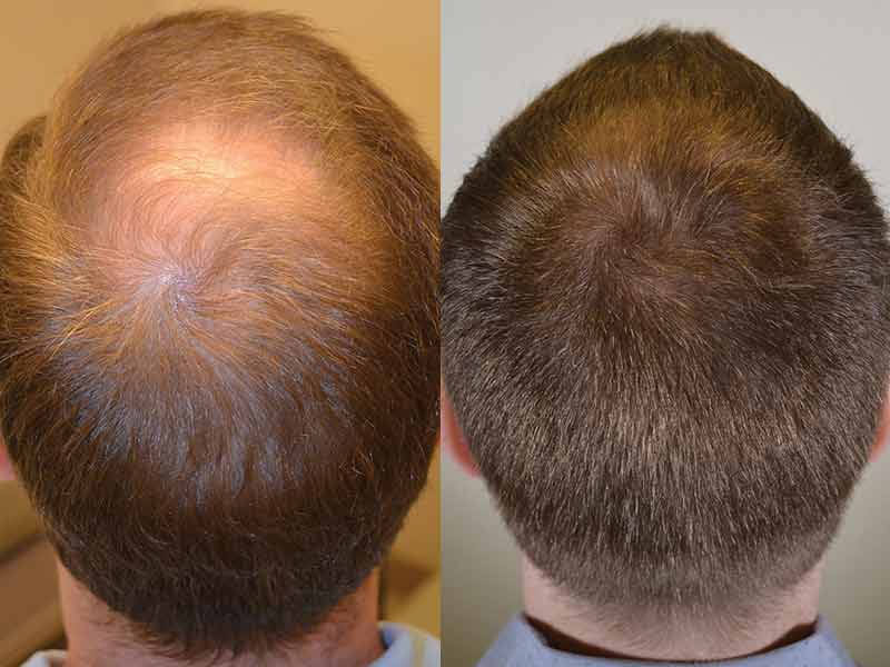 Dutasteride For Hair Loss Is It A Feasible Solution Lewigs