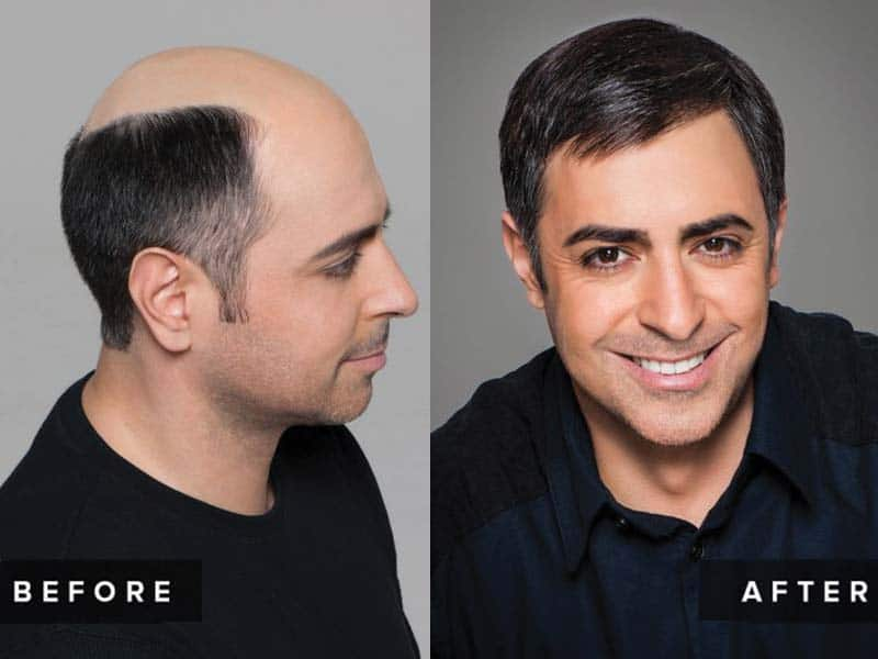 Signs Of Balding - How To Know If You're Going Bald?