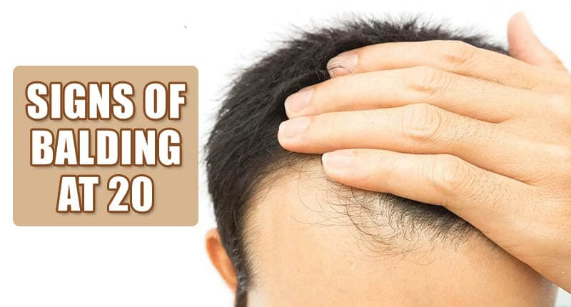 Signs Of Balding At 20: Are You Caught With Any?