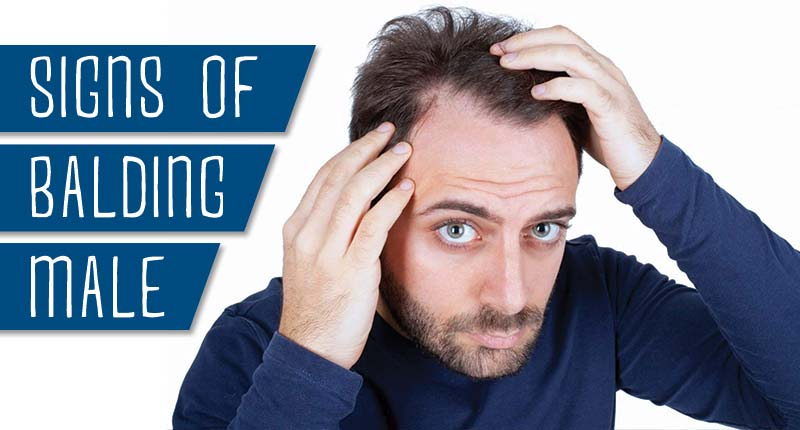 Are You Experiencing These Signs Of Balding Male?