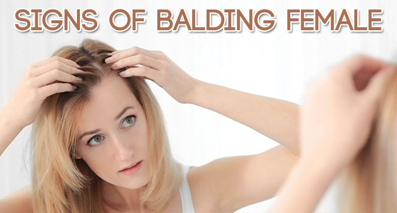 What Are The Signs Of Balding In Female?
