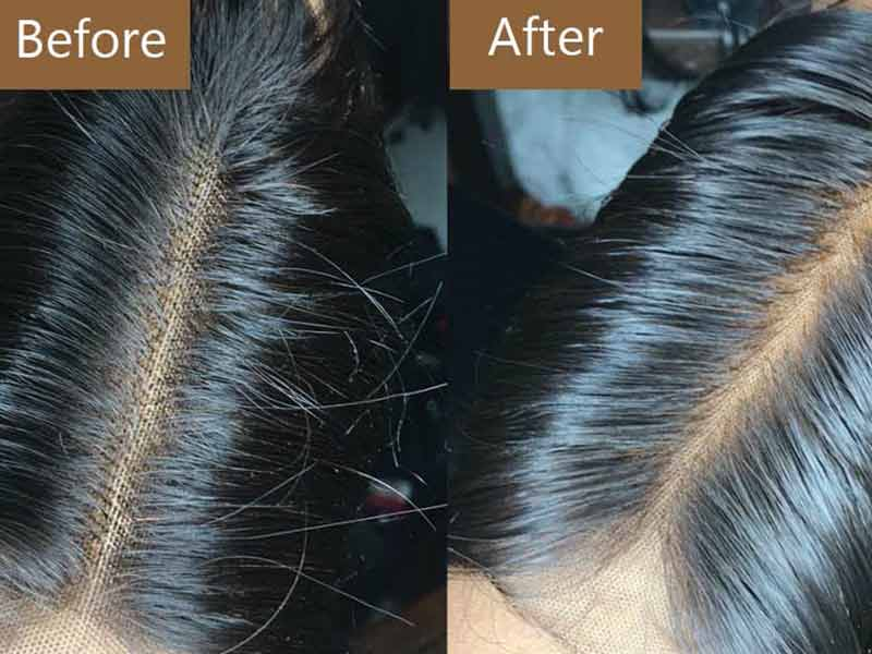 Bleaching Knots On Lace Closure: Why & How?