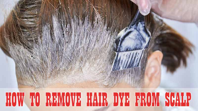 How To Remove Hair Dye From Scalp? – 7 Easy Hacks!