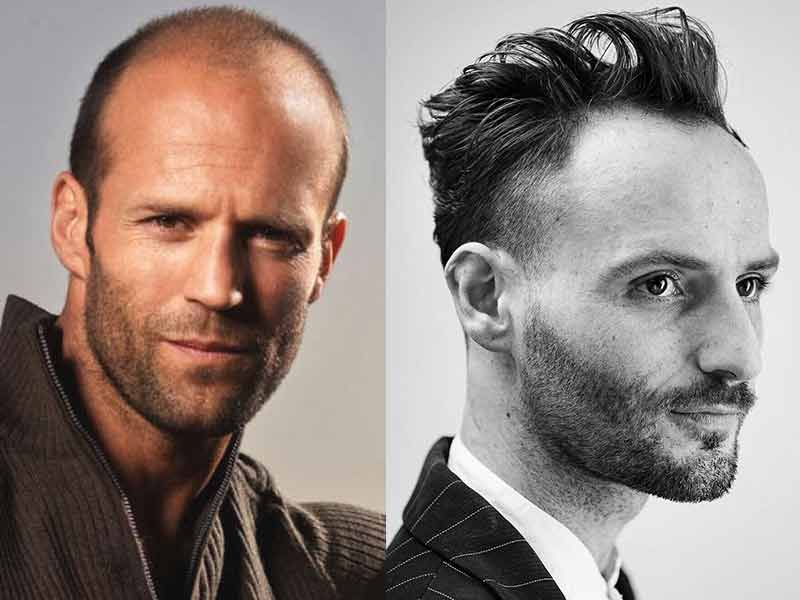 11 Hairstyles For Men With Thin Hair And Big Forehead Lewigs