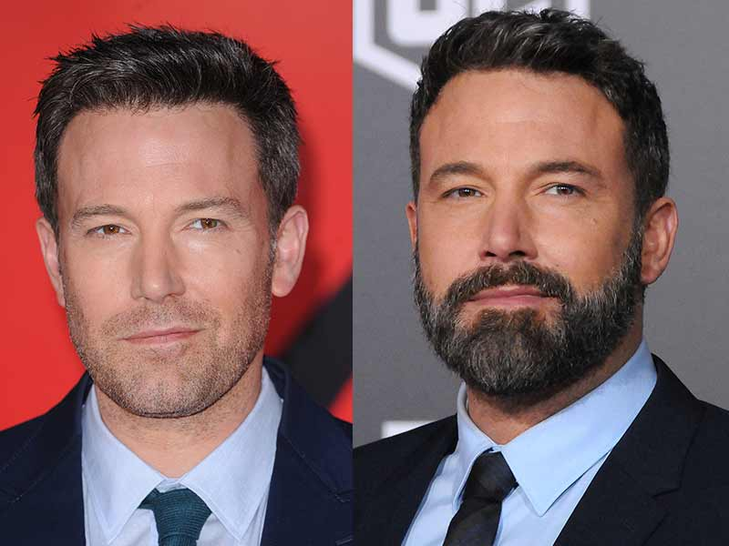 Bald With Beard - The Best Ways To Rock It!