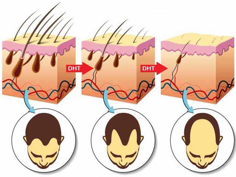 Does Smoking Cause Hair Loss? Myth Debunked!