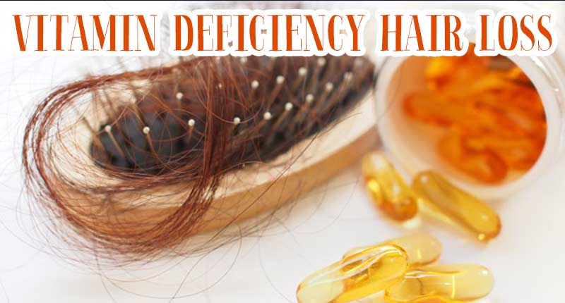 Does Vitamin Deficiency Entail Hair Loss? How To Deal With It?