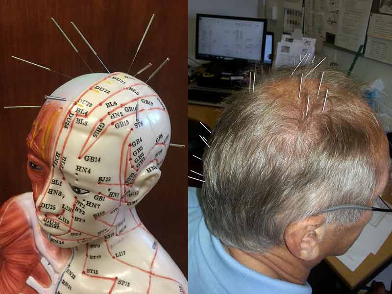 Acupuncture For Hair Growth - Is It A Viable Option?