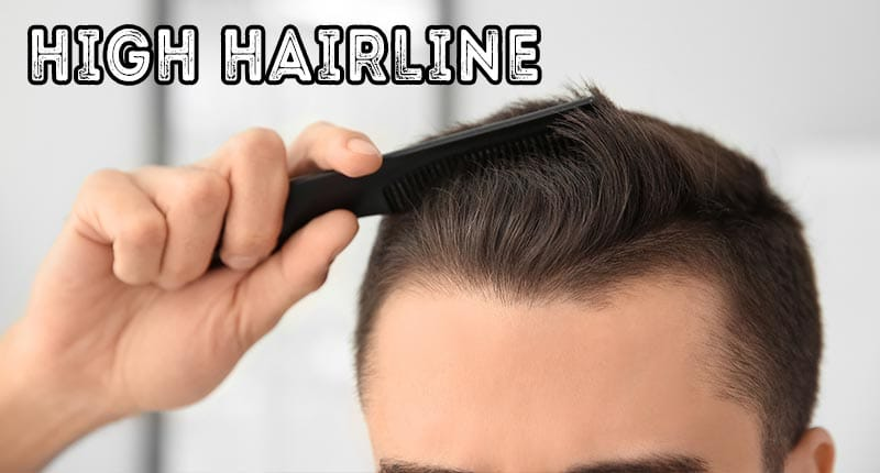 The Culprits Behind High Hairline & How To Fix It