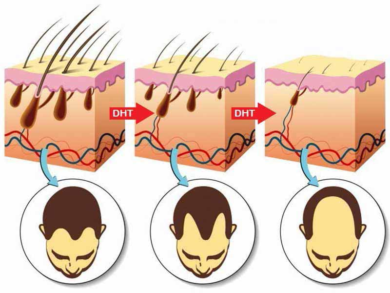 Does High Testosterone Cause Hair Loss? It Really Does!