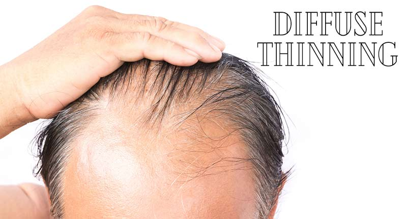 Here We Reveal The Startling Fact About Diffuse Thinning!