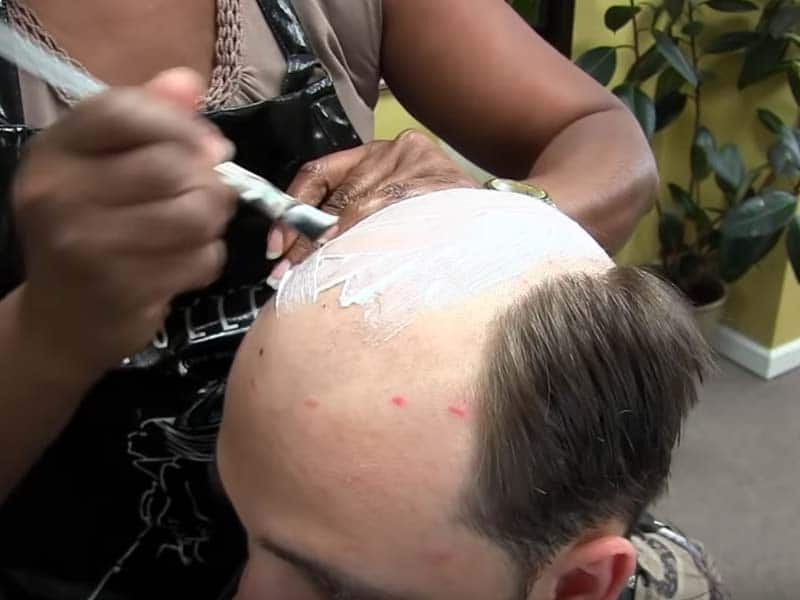 Itching Feeling When Wearing Hair System? Problems & Solutions
