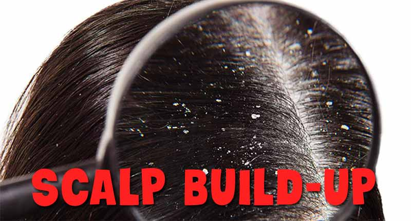 Scalp Build Up: Don't Mistake It For Dandruff! - Lewigs