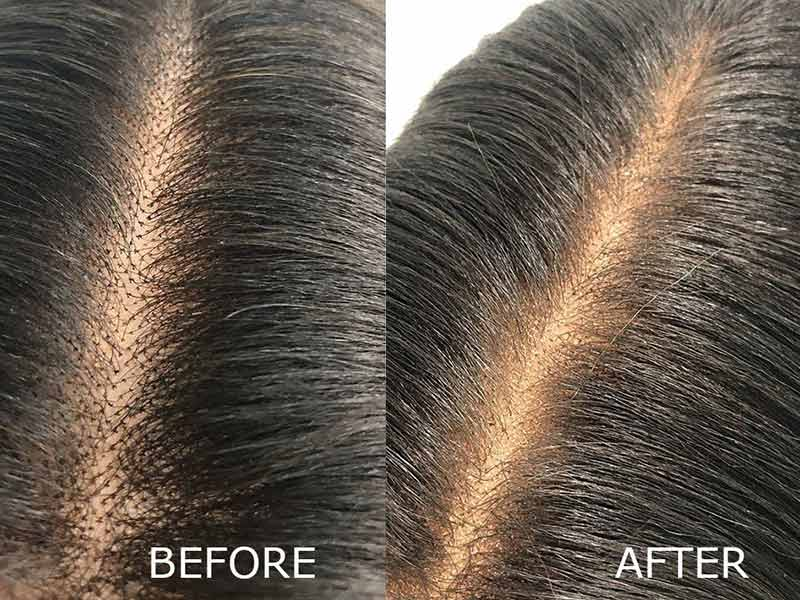 How To Make A Lace Closure From Scratch? - An Expert's Guide
