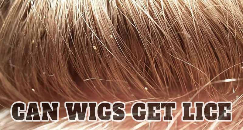 Can Wigs Get Lice? Be Cautious When Wearing!