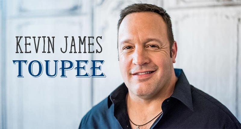 Kevin James Toupee - Did He Wear A Hairpiece On Queen?