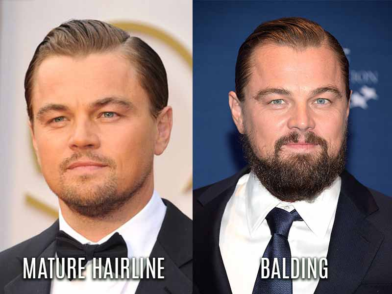 The Forbidden Truth About Mature Hairline Revealed By An Old Pro