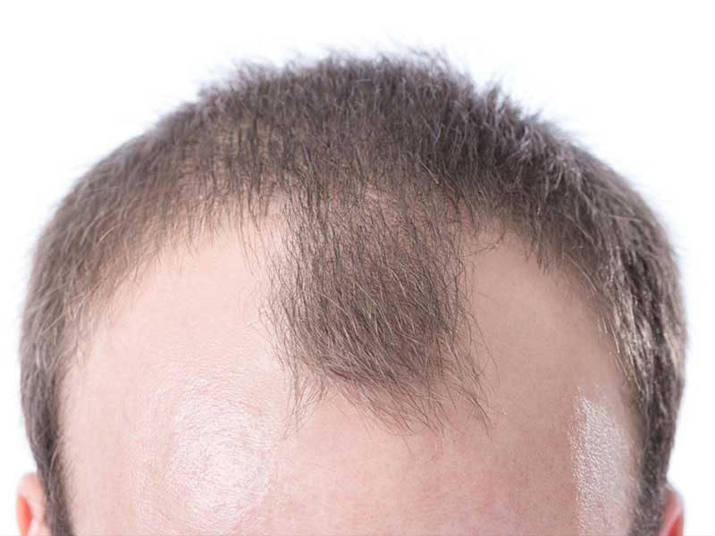 Mature Hairline Vs Balding: Are These Two The Same?